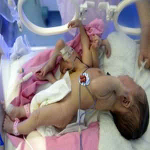 PICS : Baby with four hands and four feet!