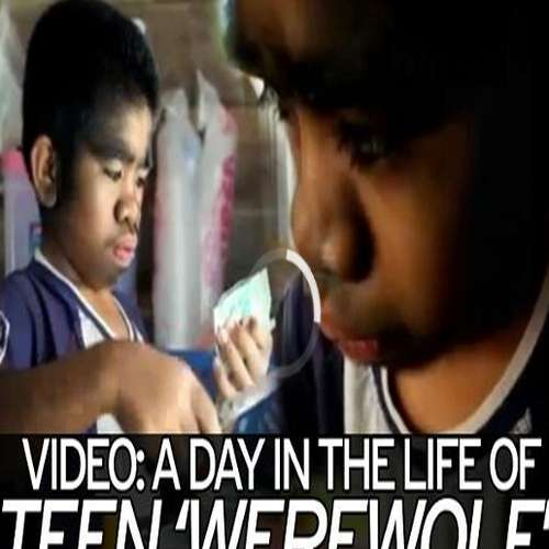 Amazing teenage werewolf revered as god by thick hair covering entire body, Must watch - OMG News in Hindi