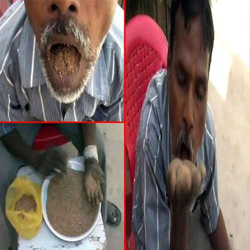 ajabgajab amazing man ate sand gravel since  years says still fit and fine   KKN - OMG News in Hindi