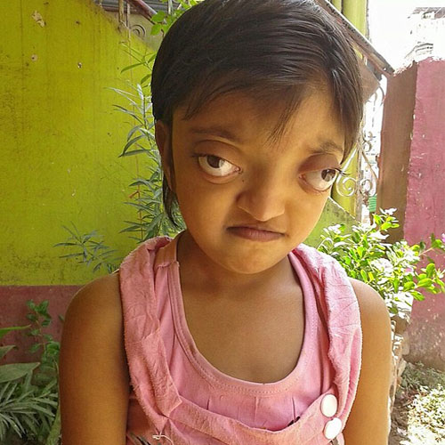 meet the indian girl with alien like eyes part 2