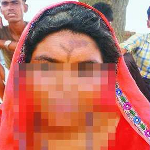 jaipur woman tattooed with abuse allegedly by in laws - Crime News in Hindi