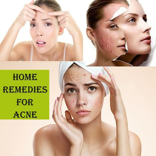 Home remedy to get rid of acne - Home Remedies in Hindi