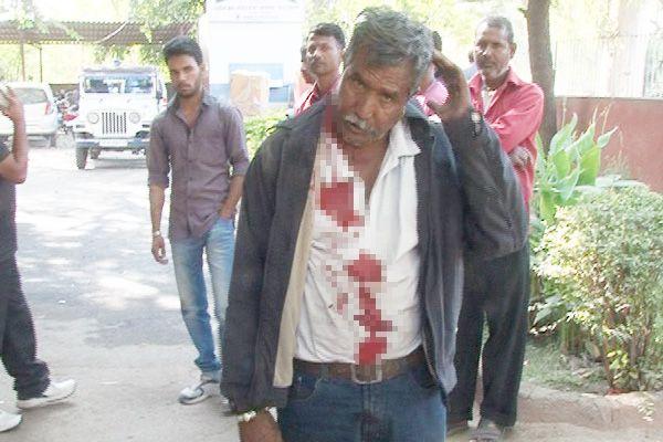 ajmer news : Drivers head burst into fights - Ajmer News in Hindi