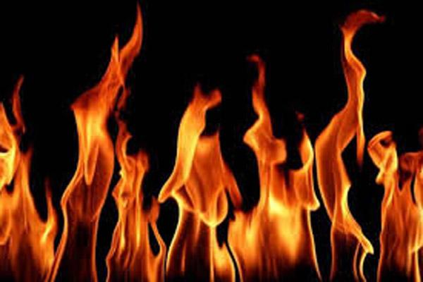 यूपी के पांच बच्चे बुरी तरह आग में झुलसे