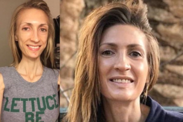 Bethany Ugarte California health blogger reveals how she battled IBS - Weird Stories in Hindi