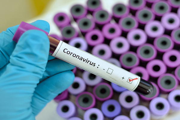 After the doctor came to Corona positive in Bhilwara, the department made concrete arrangements for corona control - Jaipur News in Hindi