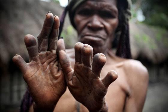 ये क्या! परंपरा की वजह से यहां काट दी जाती है महिलाओं की उंगलियां