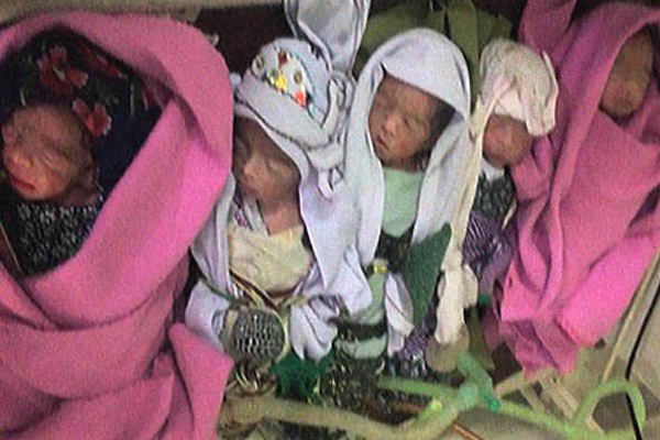 Mother of Five gives birth to quintuplets in Quetta - Weird Stories in Hindi