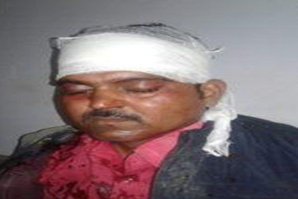 attacked on shiv Sena candidate supporters four injured in gonda - Gonda News in Hindi